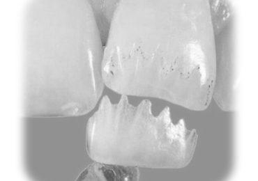 Восстановление (реставрация) зубов